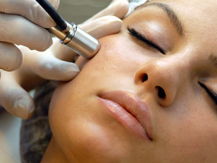 $39 for Microdermabrasion and a Facial ($145 Value) OR Buy 3 for $115 ($435 Value)